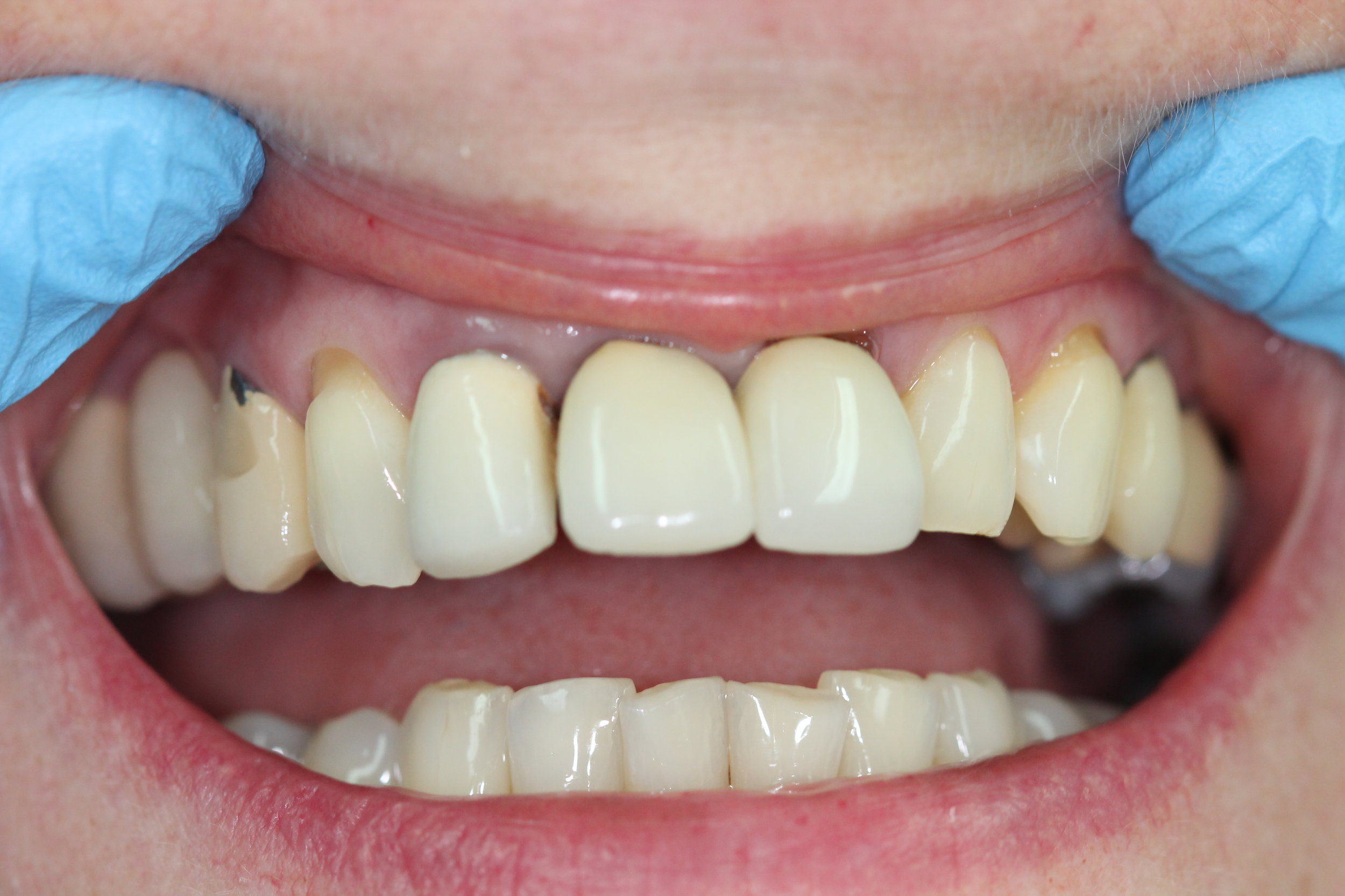 Unsightly ill-fitting crowns before treatment
