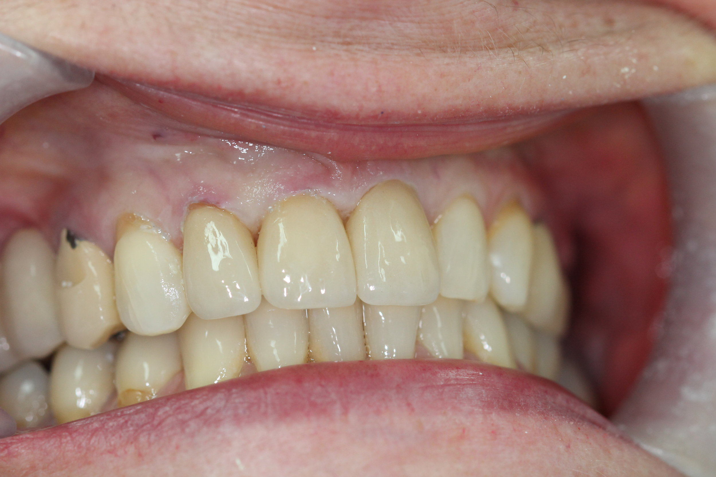 Natural looking replacement crowns after treatment