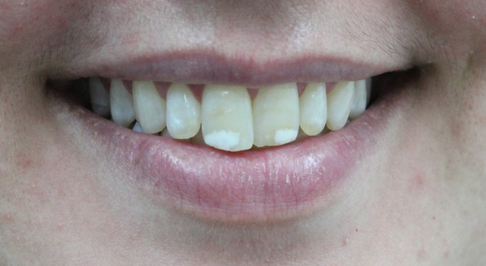 Smile Makeover at tooth - before