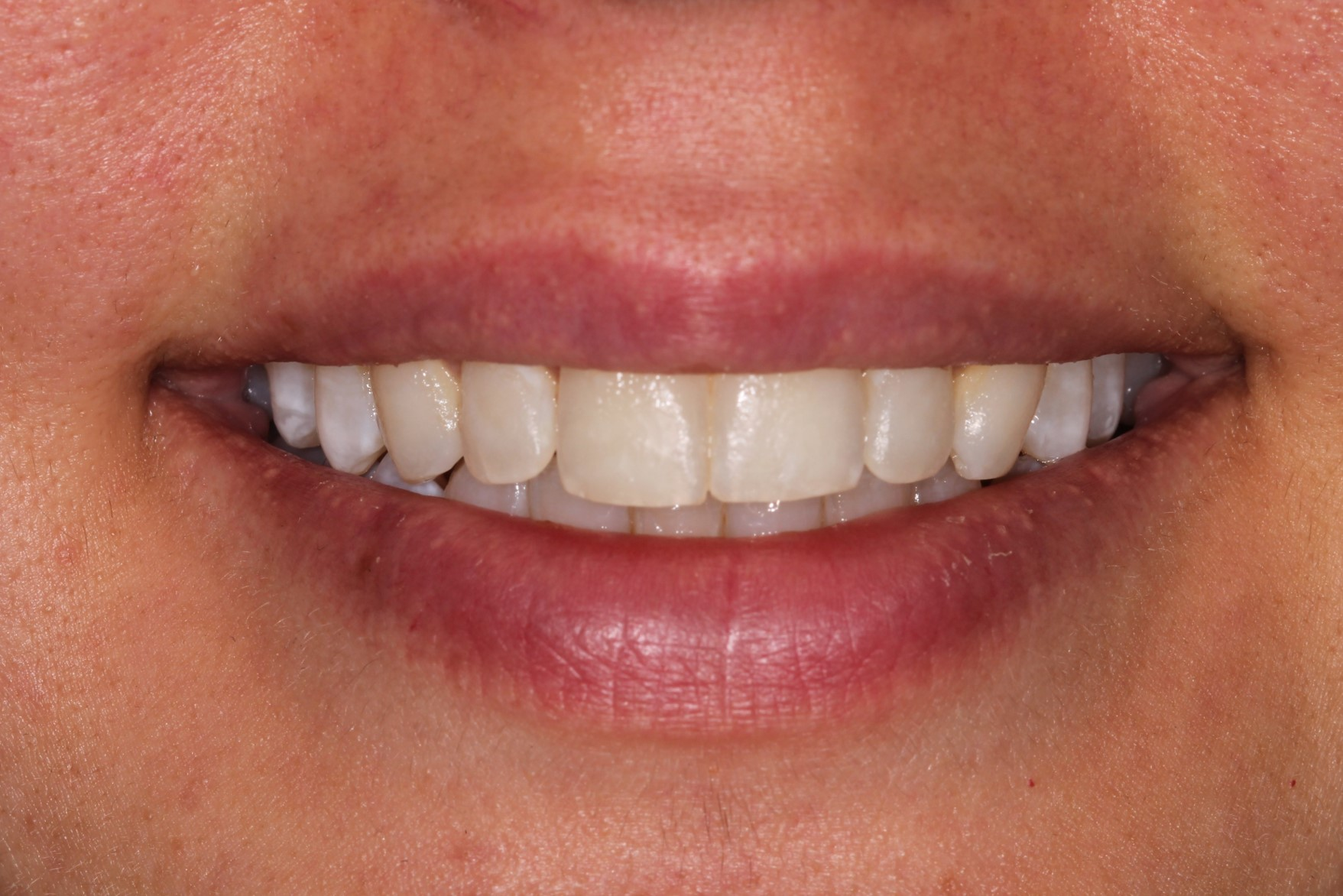 Smile Makeover at tooth - including Inman Aligner