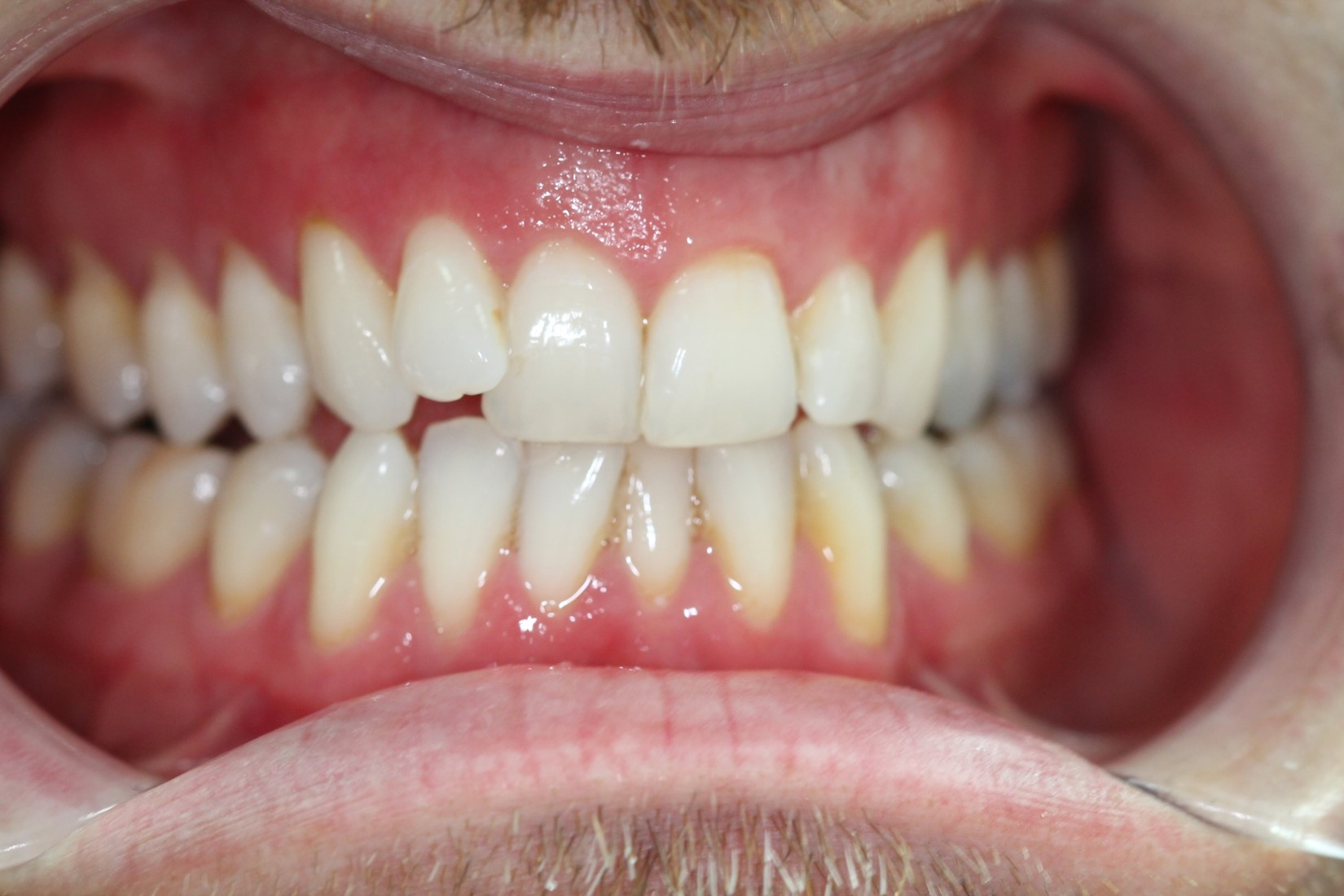 Smile Makeover at tooth (top teeth) - before