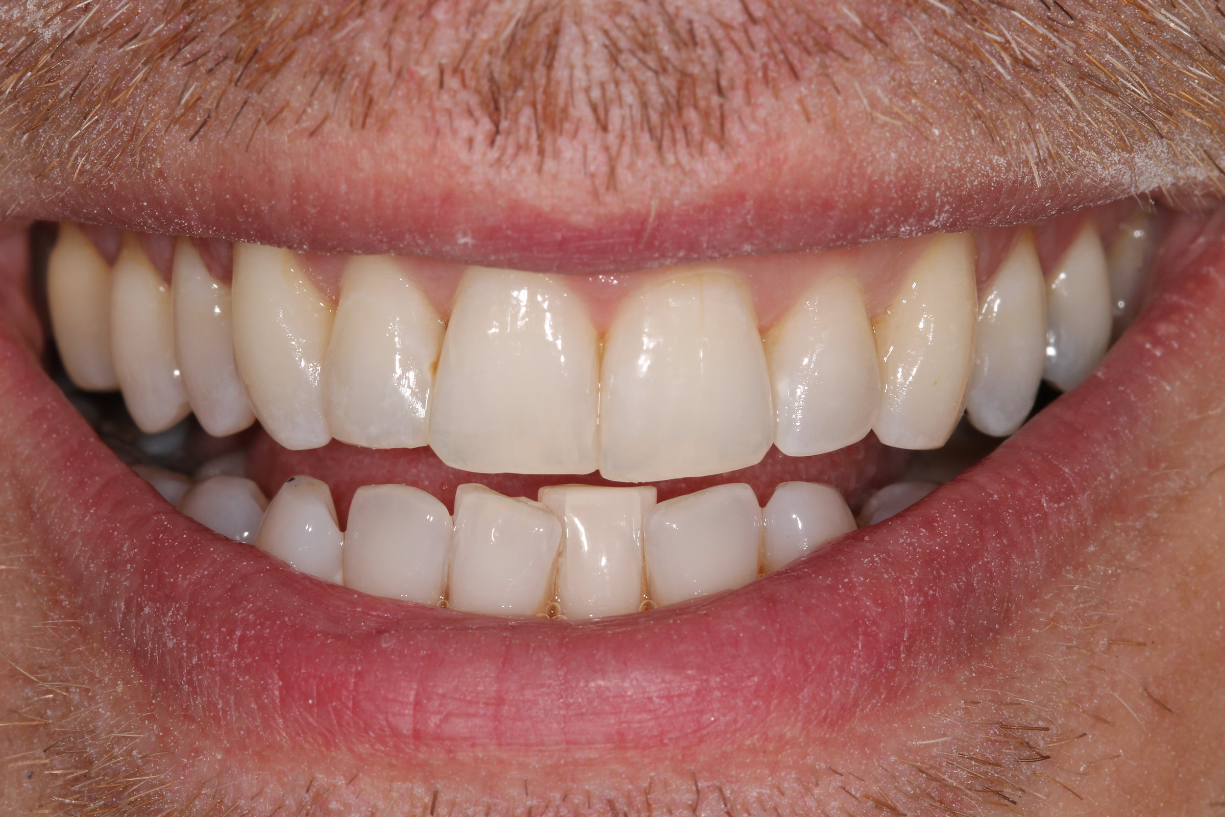 Smile Makeover at tooth (top teeth) - after