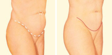 tummy-tuck-side-before-after.jpg
