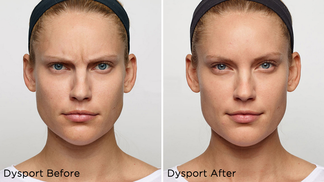 Dysport® was used to soften lines around the glabella (the smooth part of the forehead above and between the eyebrows).