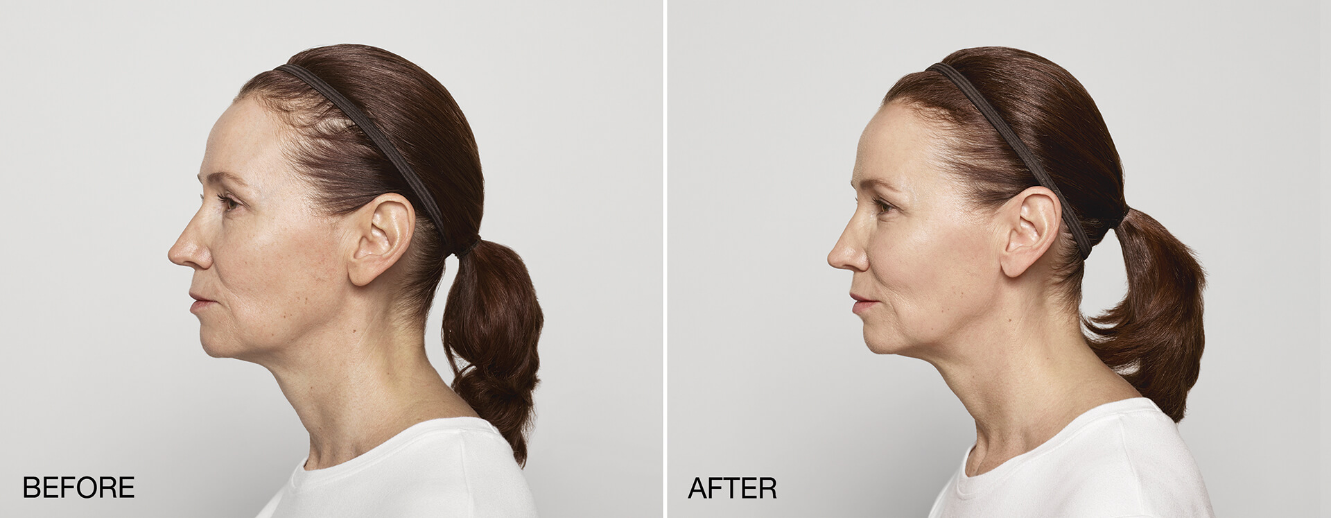 A combination of the Dysport® and Restylane® products were used to restore fullness to the cheeks and lips, and smooth wrinkles in the forehead and around the eyes.