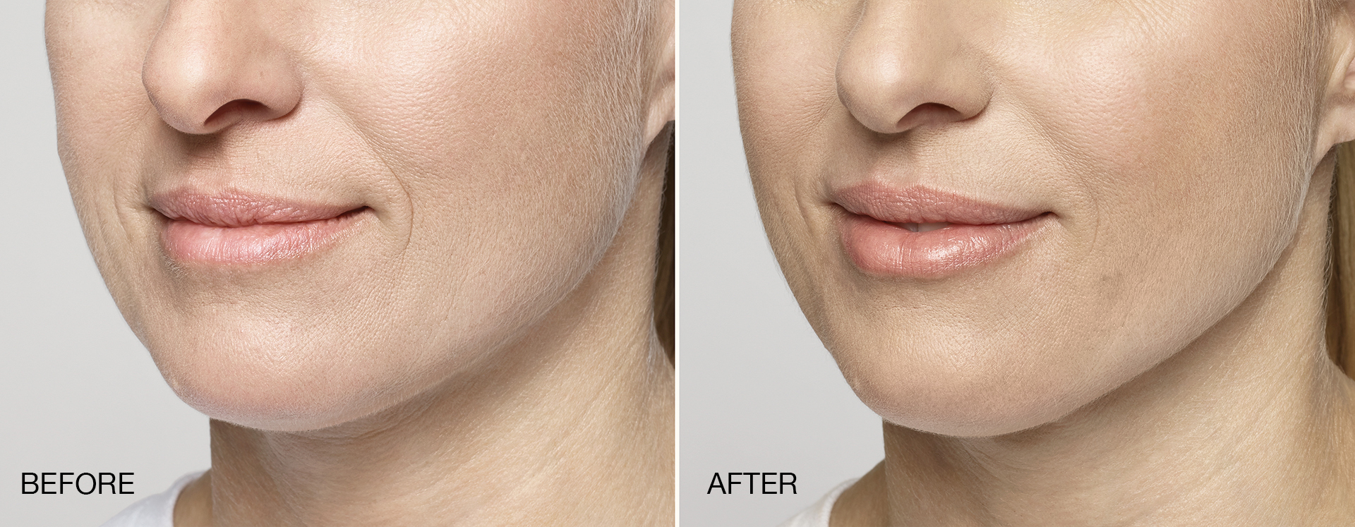 Here, Restylane® Silk was used to add fullness to the lips.
