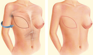 Occasionally, the flap can reconstruct a complete breast mound, but often the latissimus flap provides the muscle and tissue necessary to cover and support a breast implant.