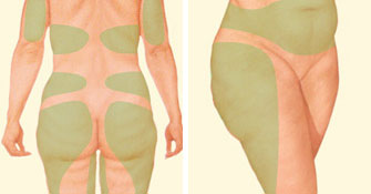 liposuction-jonesboro-ar.jpg