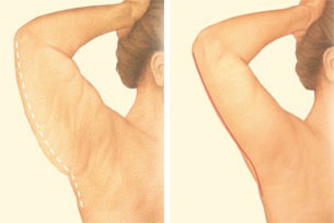 arm-lift-back-arm-incision.jpg