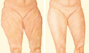 medial-thigh-lift-incision.jpg