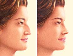 rhinoplasty-nose-job-jonesboro-ar.jpg