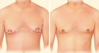 gynecomastia-surgery-jonesboro-ar.jpg
