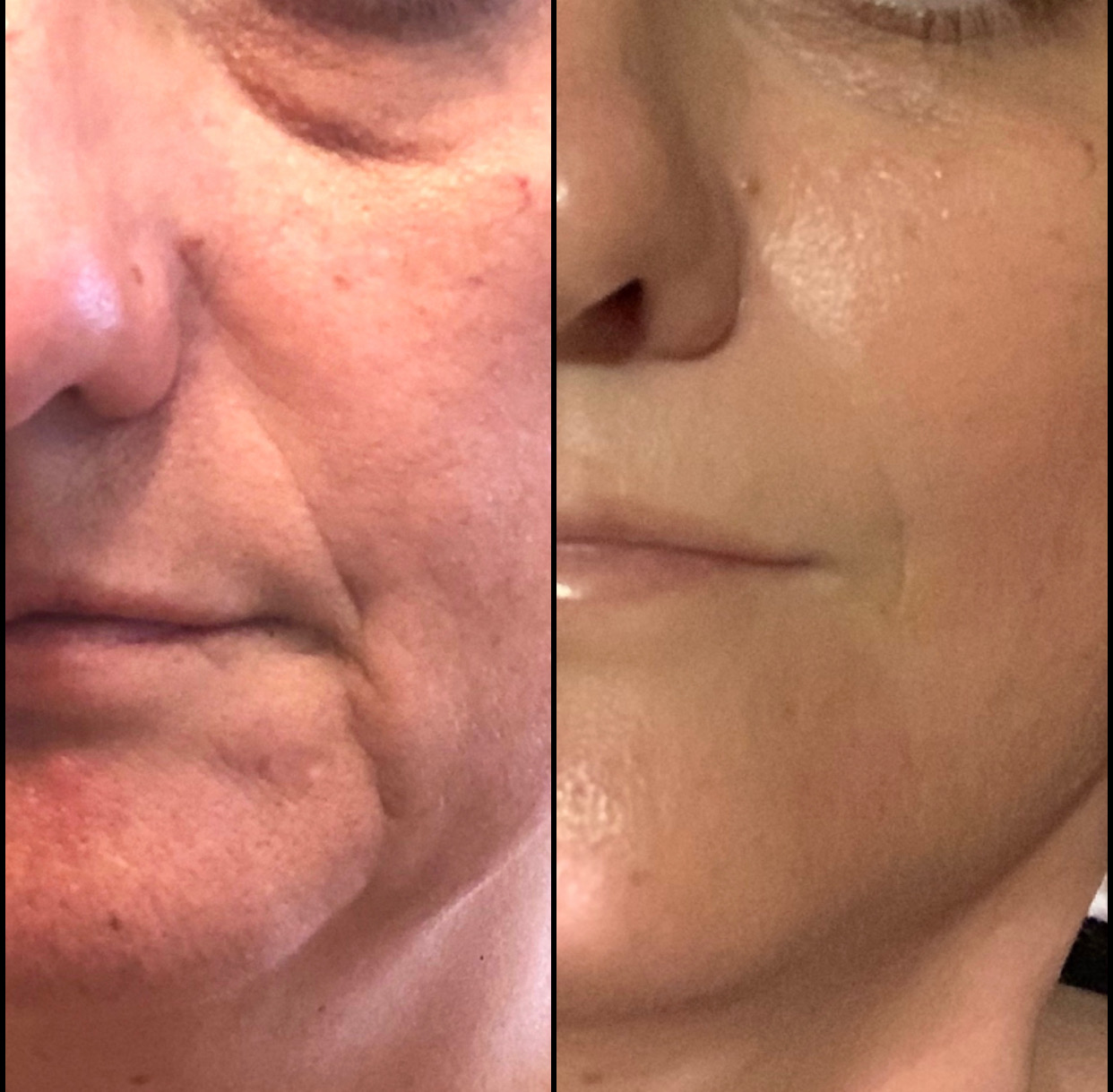 Cheek and NasoLiabial Groove Line Reduction