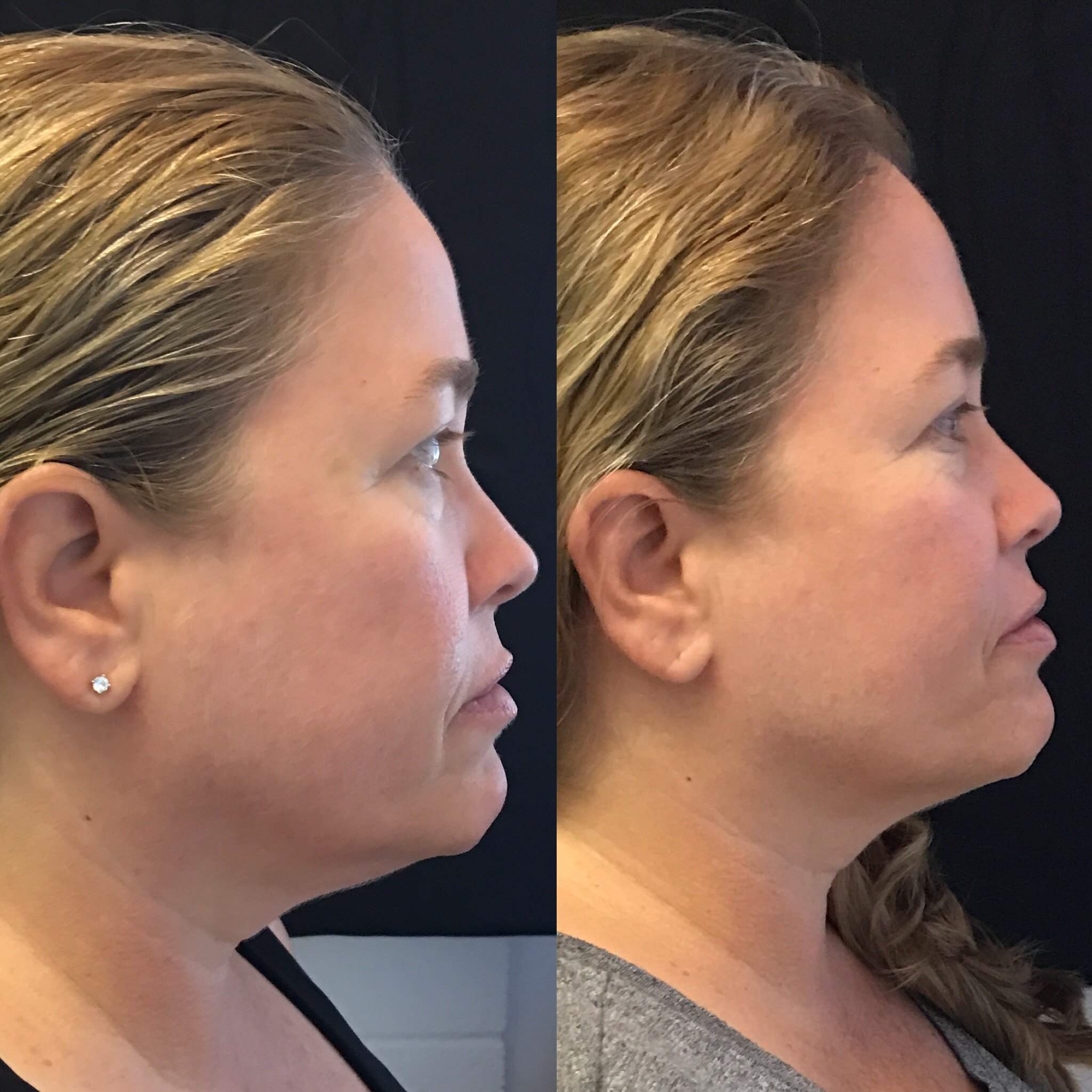 Neck and Jaw Lift