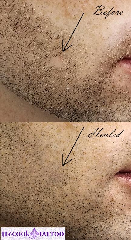 Liz Cook Tattoo PMU Hair Restoration Beard Bald Spot Before Healed.jpg