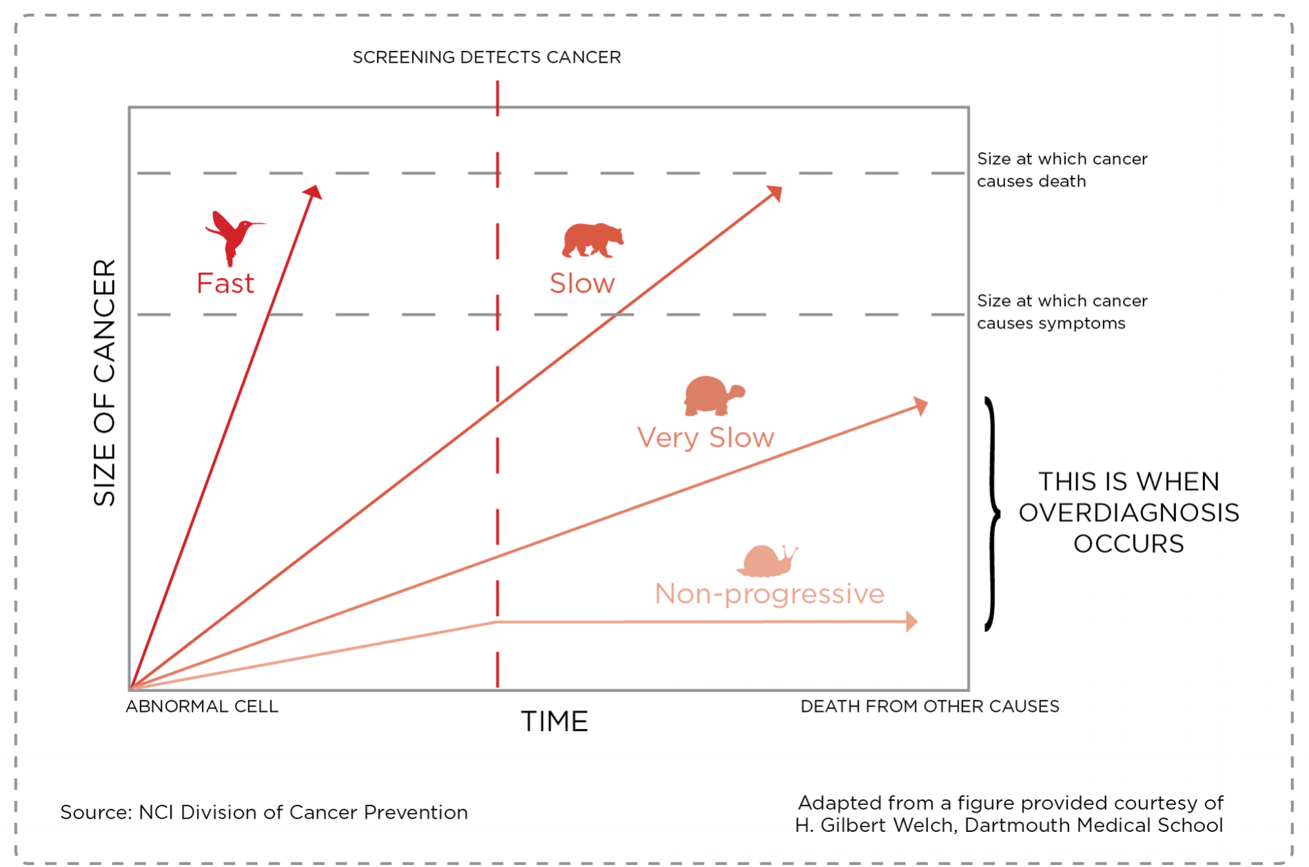 NCI Division of Cancer Prevention,  on overdiagnosis