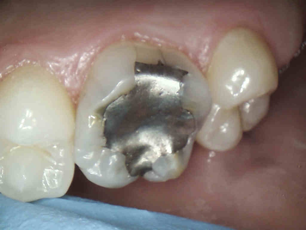 Intra-oral upper right molar (#3) with multiple fractures along the filling.