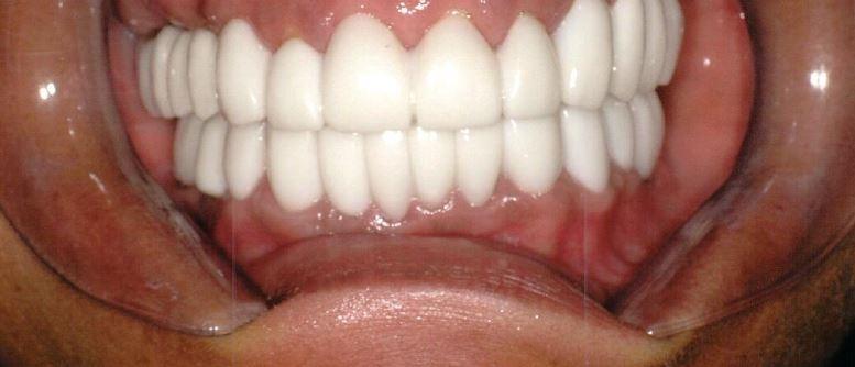 After Implants Madeline