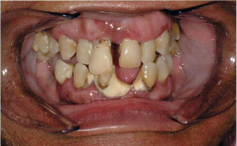 Before Implants Fofana