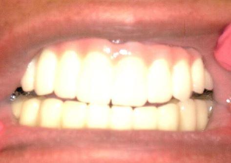 After Implants Fofana