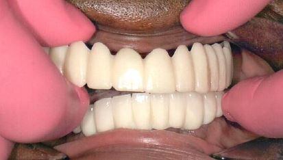 After Implants Jacqueline
