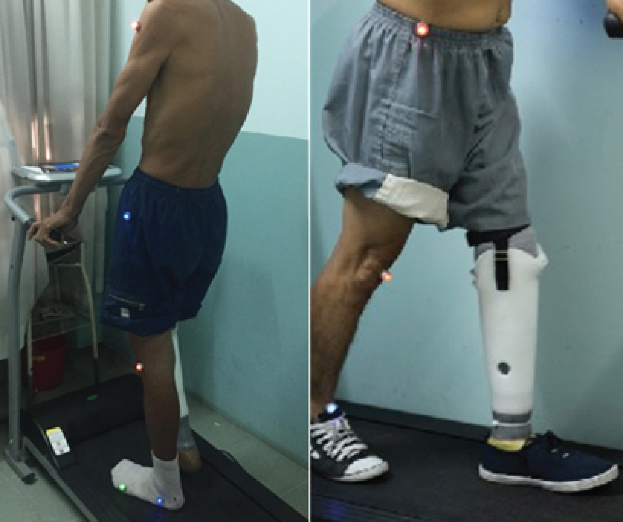 Figure 2.   Gait Motion Analysis Sensor Placement.  Left: Sagittal Left. Right: Sagittal Right.