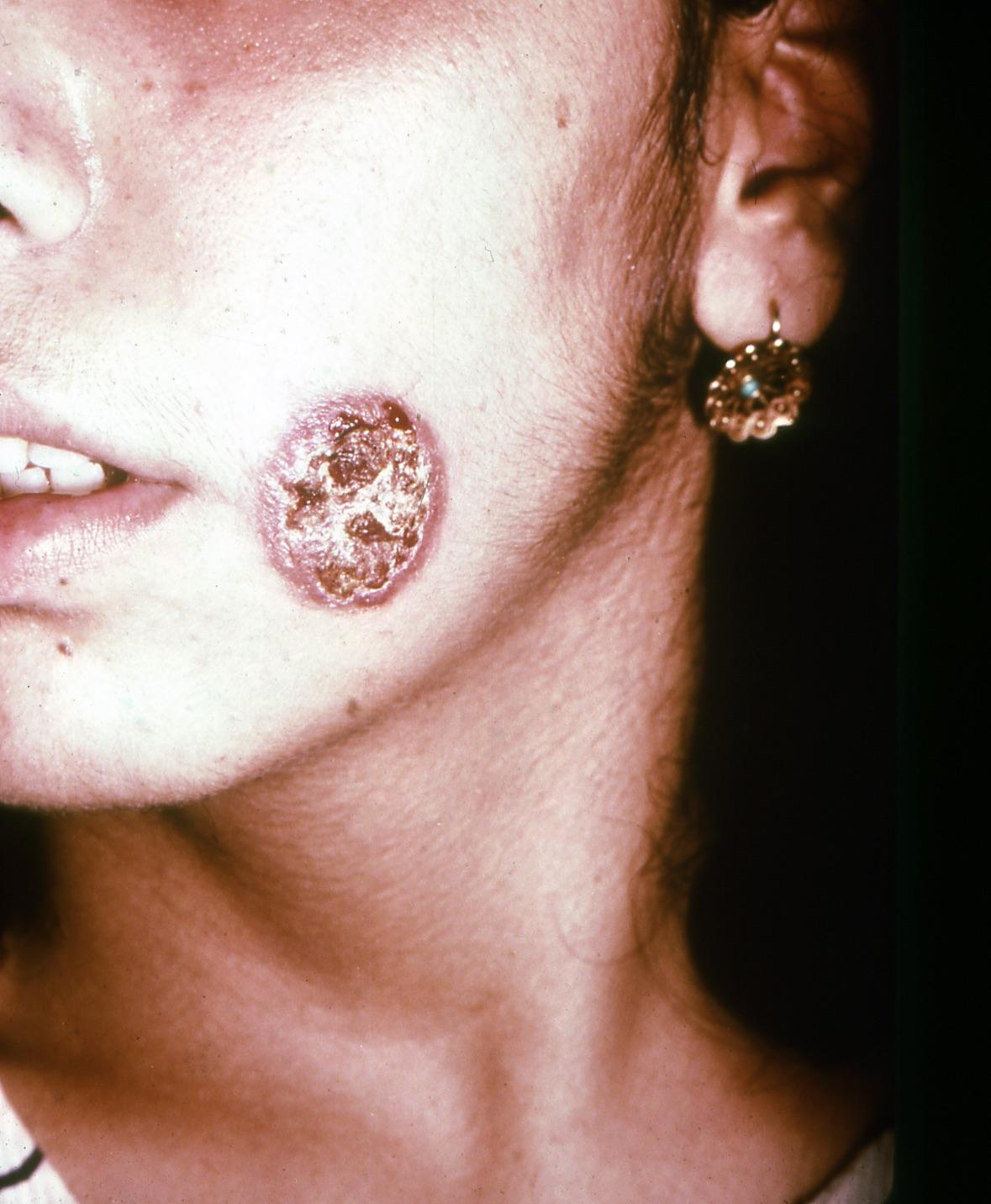 Cutaneous leishmaniasis, old lesion.