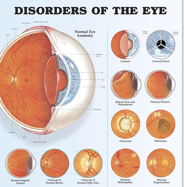 #eyes #eye #diabetes #cataract