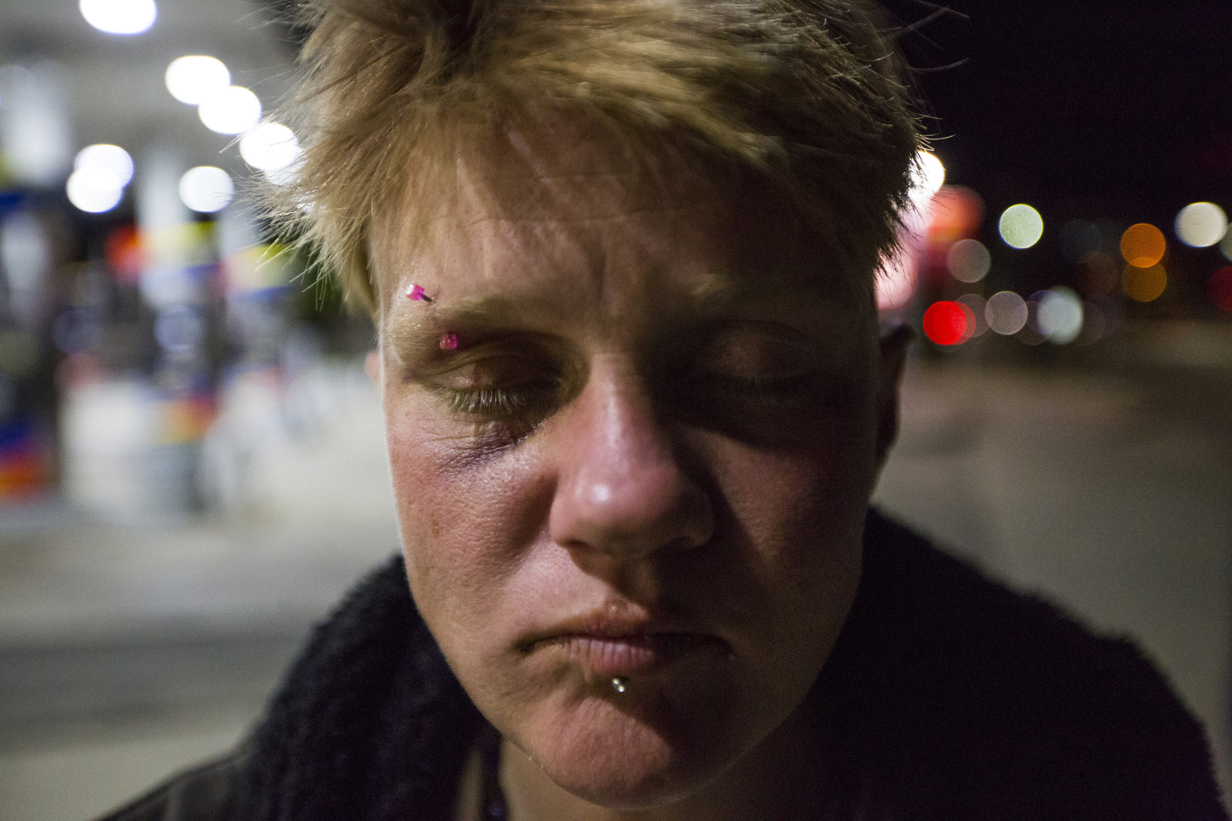 "Diane closes her eyes after talking about the numerous times she has been beaten on ""Methadone Mile."" She claims that women are particularly vulnerable to violence and abuse on ""The Mile."""