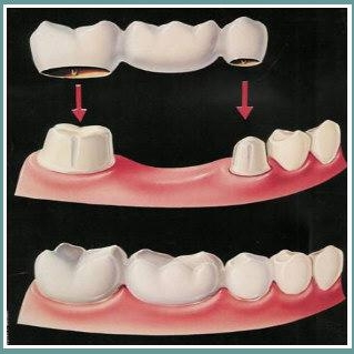 A bridge is a more economical option, but doesn't last as long as an implant.