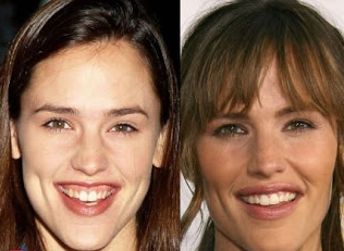 Yes, this is Jennifer Garner, before and after.