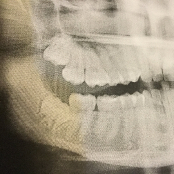 Wisdom teeth can become painfully impacted and create problems for other teeth.
