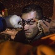 A Samu Dr stitching a man's eyebrow after being hit by a CRS officer with a baton