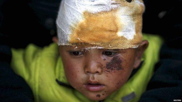 Nepal injured baby.jpg