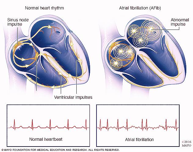 mcdc11_heartforafib.jpeg