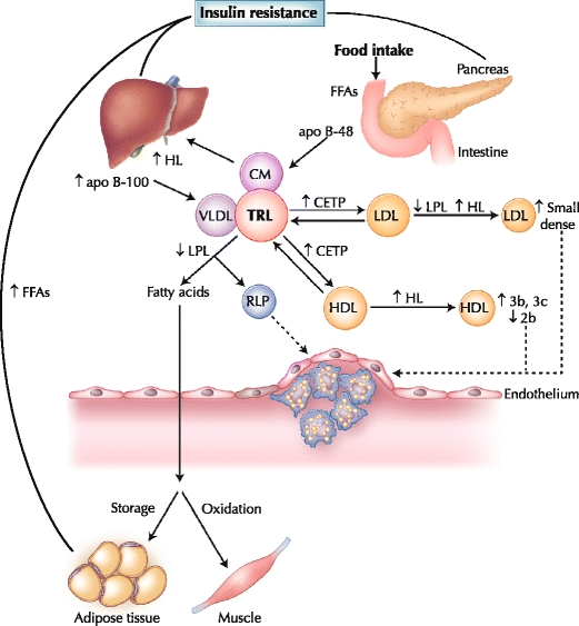 Postprandial-lipoprotein-metabolism-in-diabetes-Insulin-resistance-plays-a-central-role.png