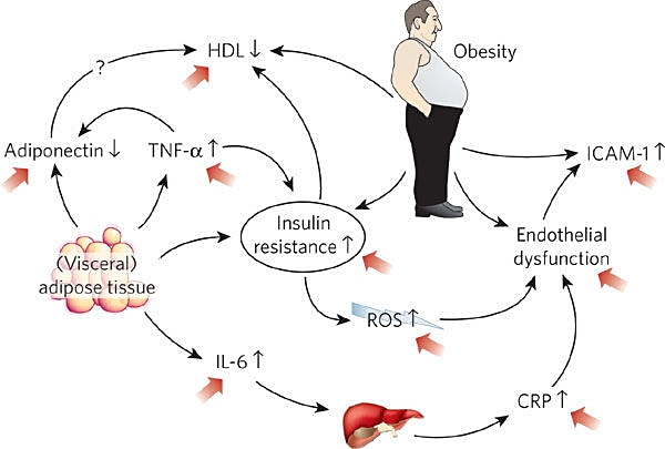Obesity CVD.jpg