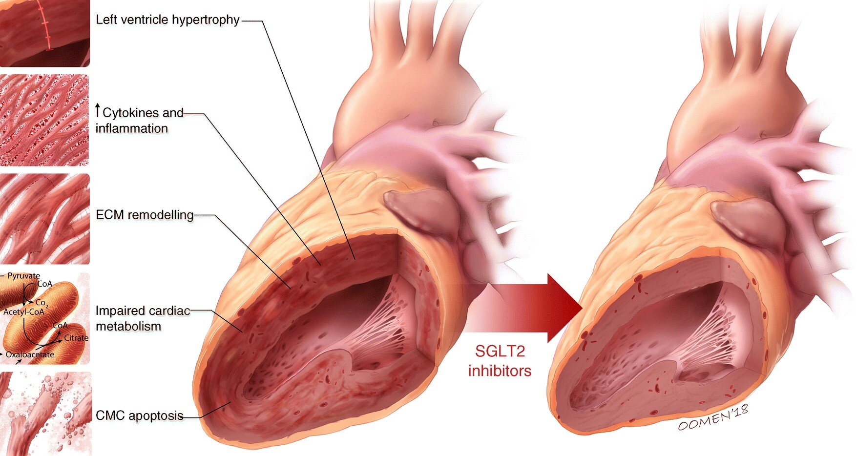 Heart Failure SGLT2.jpg