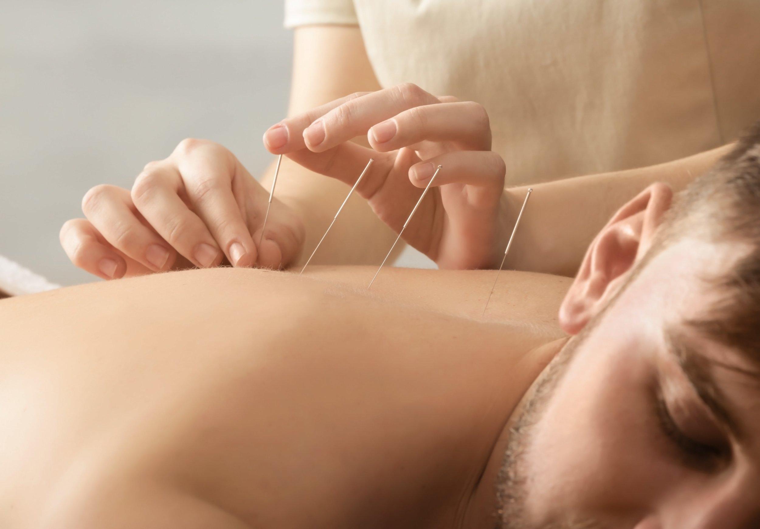 acupuncture-min.jpg
