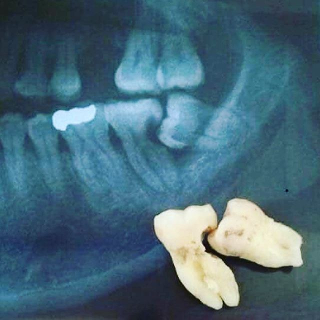 Don't wait until your wisdom teeth hurt to address them! Too often we see people lose two teeth as the result of waiting too long to address them. #rossviewdental #loveyoursmile