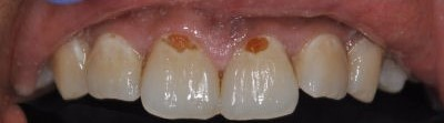 Before: Cavities Near Gumline