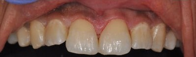 After: Tooth Colored Fillings Placed