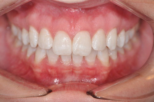 After: Zoom Whitening Completed