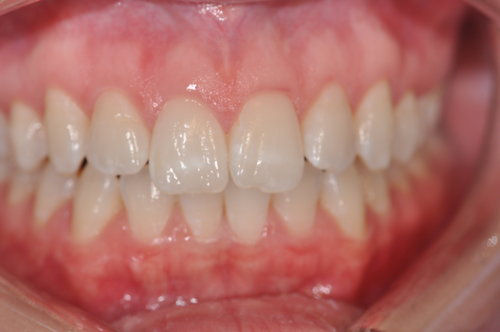 Before: Patient Wanted Whiter Teeth