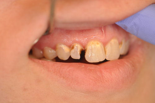 Before: Painful Decayed and Cracked Tooth