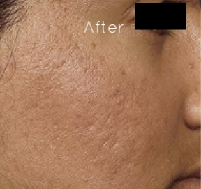 microneedling-before-and-after-acne-scars.jpg