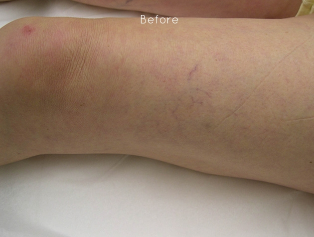New - Leg Vein 2.jpg