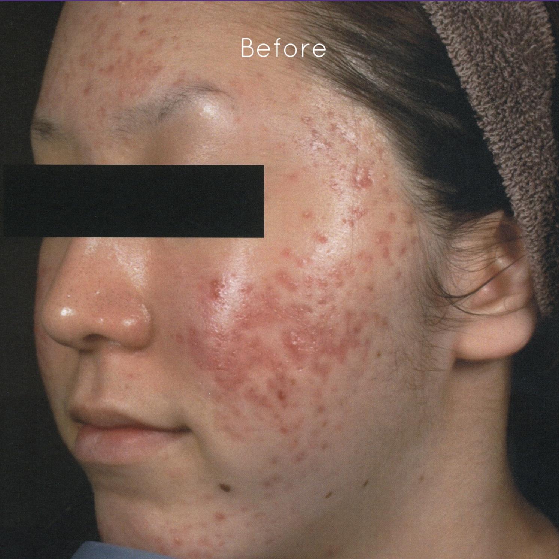Dr.-Masaki-Sato-Japan-Acne-Scars-before.jpg