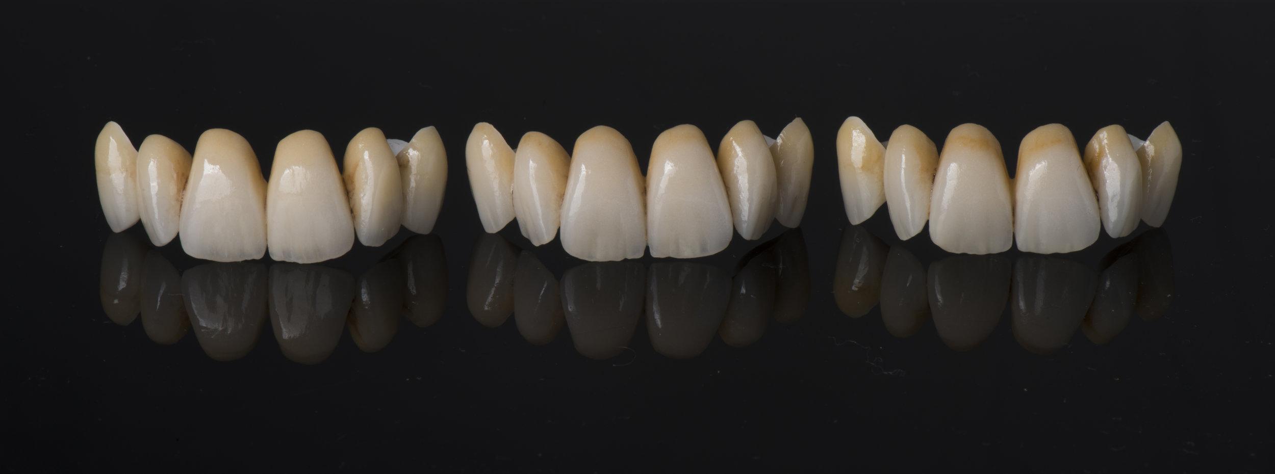 Fotografía del caso terminado (3 puentes, misma silicona, mismo resultado)