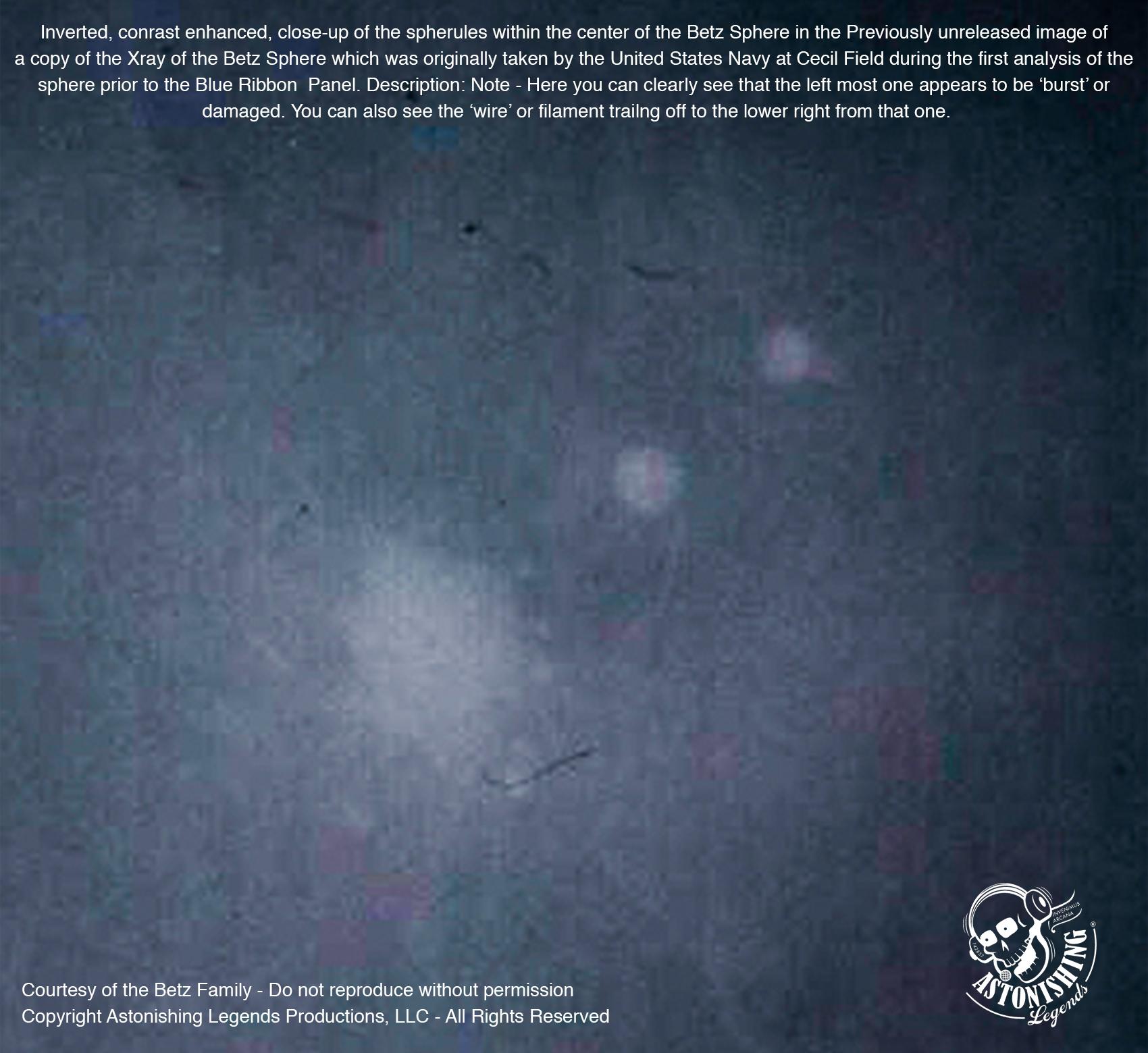BETZ SPHERE X-RAY-InvertedContrastEnhancedSpherulesClose.jpg
